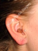 Earlobe Repair Surgery 612308