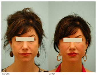 Injectable Fillers (Restylane/Perlane) before 136771