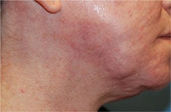 Acne Scar Treatment with Surgical Excisions and Geometric Line Closures. after 562082