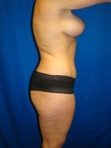 Breast Augmentation Mastopexy and Abdominoplasty 391288