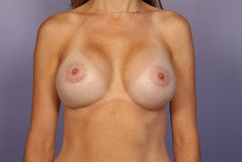 Breast Implant Revision after 622829
