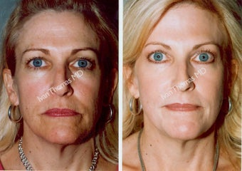 Non-Surgical Face Lift- Exoderm  before 242971