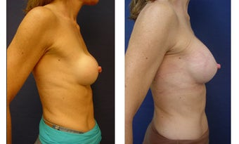 Breast implant correction 399965