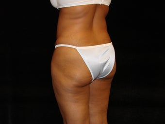 Buttocks Augmentation 517579