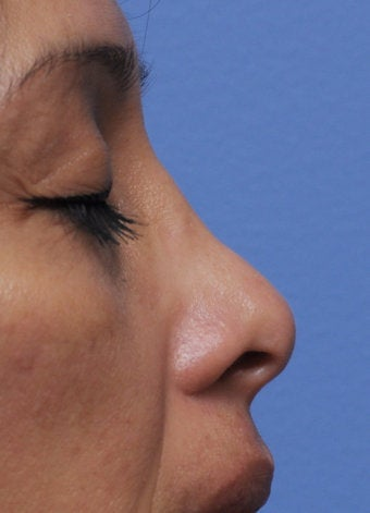Non-Surgical Nose Job 430195