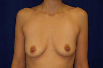 Breast Augmentation before 336009