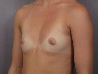 Breast Augmentation before 467312