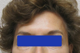 60 year old female treated with Botox for forehead lines