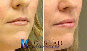 Lip Augmentation after 671907