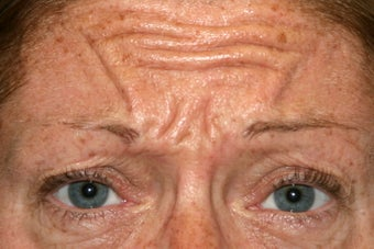 43 year old woman treated for frown lines before 1106653