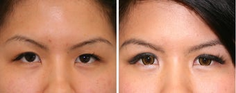 Double Eyelid Before & After Photos Patient 11 before 1230261