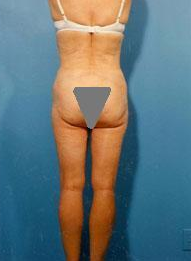 Liposuction of Back Rolls after 289515