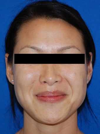 Restylane for Nasolabial Folds before 926686