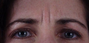 "Botox to forehead ""11"" lines before 240863"