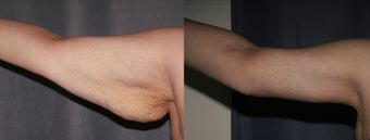 Arm Lift (Brachioplasty) before 633461