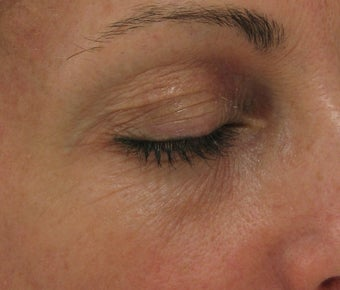 Fraxel re:pair CO2 laser resurfacing for eyes (Nonsurgical Blepharoplasty) before 43974
