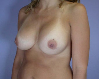 Breast Asymmetry Correction after 281340