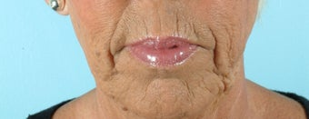 66 Year Old Female Treated for Unacceptable Cosmetic Appearance of the Face before 1075766