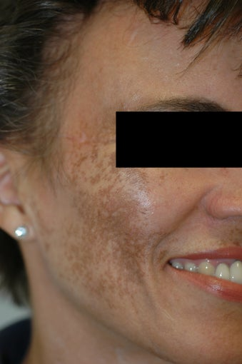 Melasma Los Angeles - No Laser Treatment before 922268