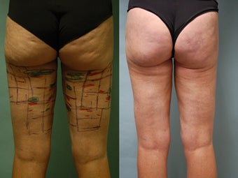 Cellulaze anti-cellulite treatment of buttocks and thighs before 648115
