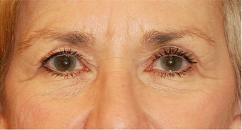 Eye Bag Surgery before 886859