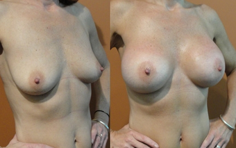 Breast Implants before 975853