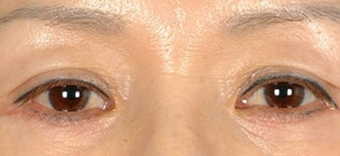 Asian Eyelid Surgery after 1208025