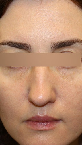 36 year old Female - Dysport and Restylane 994194