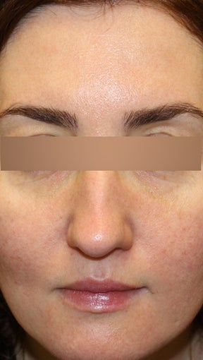 36 year old Female - Dysport and Restylane after 994194