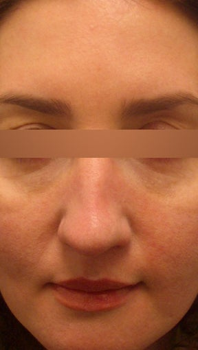 36 year old Female - Dysport and Restylane before 994194