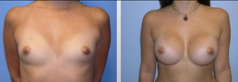 Breast Augmentation  before 256387