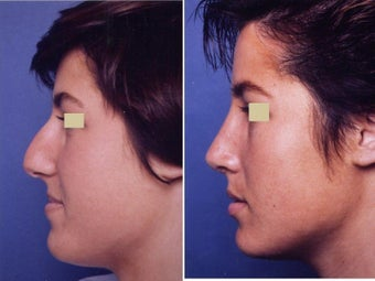 Rhinoplasty before 139105