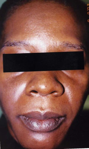 African American Woman 30 to 40 years old with hyperpigmentation after 754281