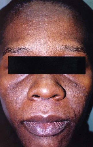 African American Woman 30 to 40 years old with hyperpigmentation before 754281
