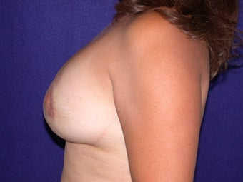 Breast Augmentation after 205562
