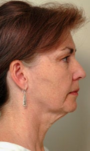 Before and After Neck Lift (Side View) before 65353