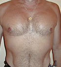 Pec Implants after 887761