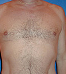 Pec Implants before 887761