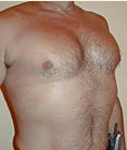 Pec Implants 887761
