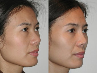 Asian Rhinoplasty before 922061