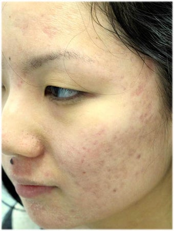 Acne Therapy after 667035