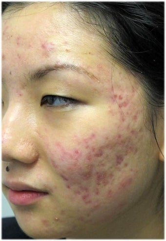 Acne Therapy before 667035