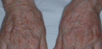Hand Rejuvenation With Radiesse after 1367248