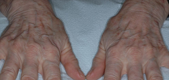 Hand Rejuvenation With Radiesse before 1367248