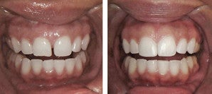 Diastema Bonding  before 997155