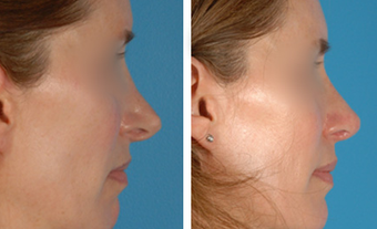 Revision Rhinoplasty before 1208289