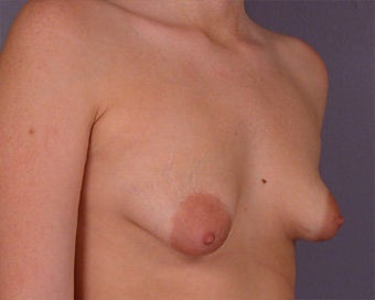 Breast Asymmetry Correction before 281331