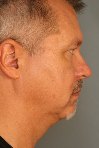 Male Chin Implant before 831525
