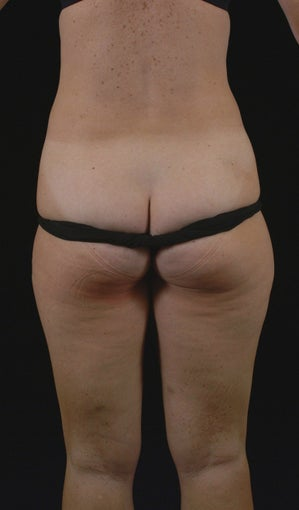 Liposuction 513562