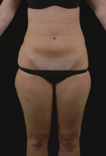 Liposuction before 513562